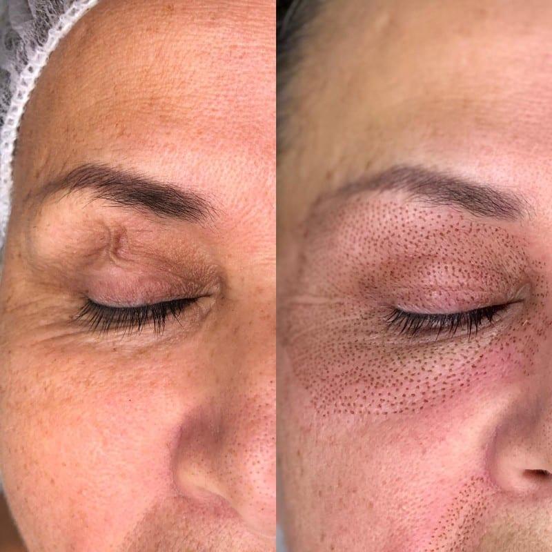 eyelid plasma fibroblast